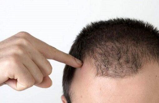 ریزش+مو